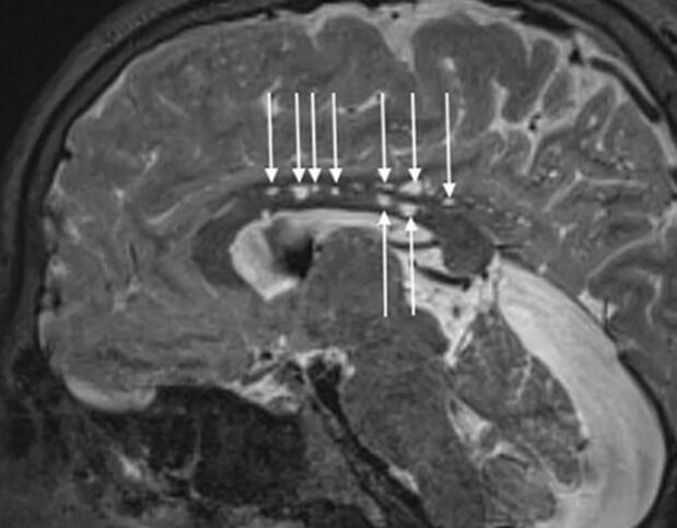 通过人工智能增强脑磁共振成像